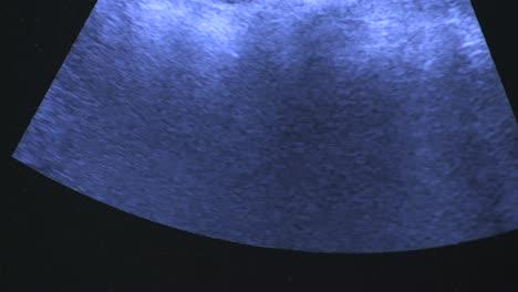 Ultrasound-Scan-5
