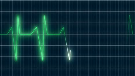 ECG-Heartrate-Graph-2