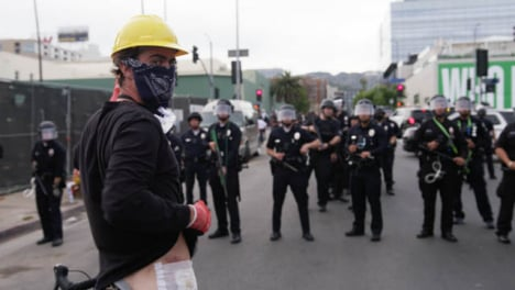 Hollywood-Protester-Shows-Camera-Injury-During-Protest