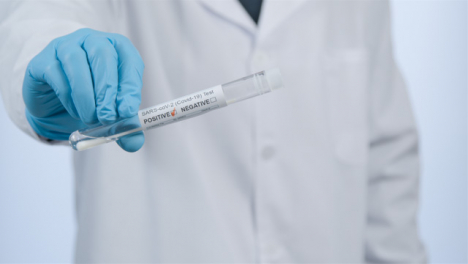 Close-Up-Shot-of-médico-Professionals-Hand-Holding-Positive-COVID-Test-Tube-Result