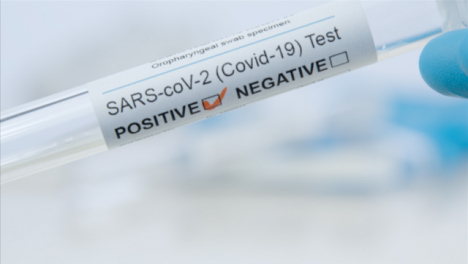 Extreme-Close-Up-Shot-of-médico-Professionals-Hand-Holding-COVID-Test-Tube-Reading-Positive-Result