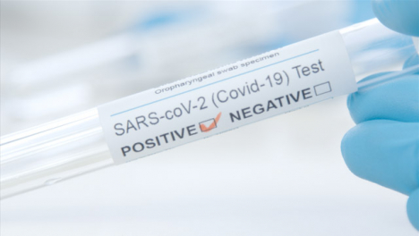 Sliding-Extreme-Close-Up-Shot-of-Doctors-Hand-Holding-COVID-Test-Tube-Reading-Positive-Result