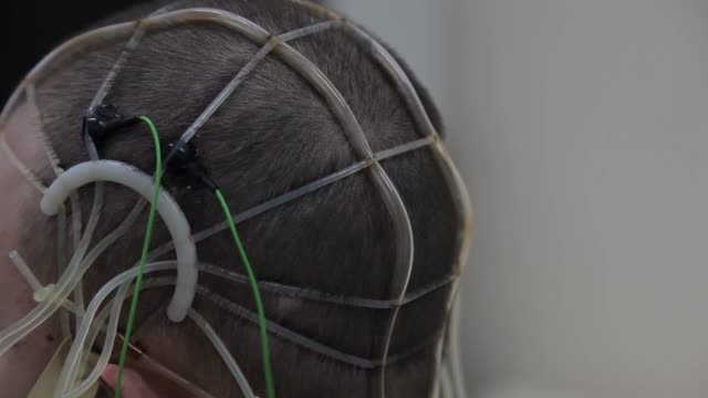The-doctor-connects-the-electronic-sensors-to-the-patient-s-head-Progressive-medical-technologies-Nanotechnology-4K