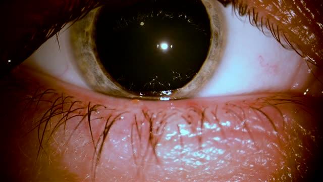 enfermedad-ocular-humana