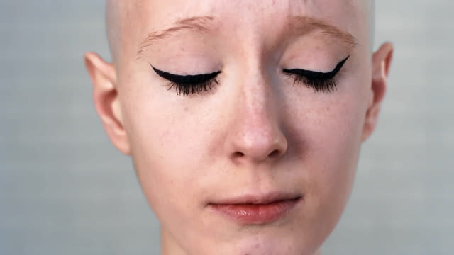 Portrait-of-a-sad-depressed-woman-suffering-from-cancer-looking-into-the-camera
