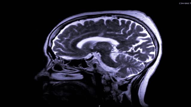 MRI-del-cerebro-en-plano-sagital-con-contraste-magnetic-resonancia-del-cerebro-