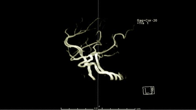 Magnetic-resonance-Angiography-(MRA)-of-the-brain-3D-rendering-image-with-gadolinium-contrast-media-