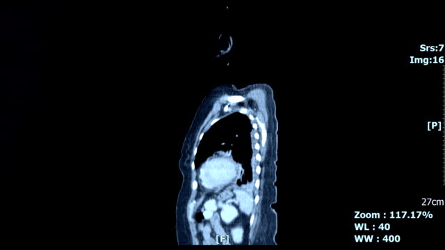 Body-inside-scan-image