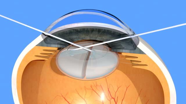 Human-eye-cataract-surgery-manual-cloudy-lens-fragmentation-3d-render-4K