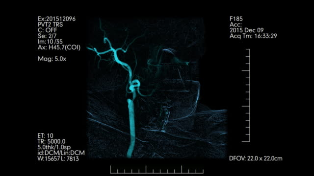 Medical-monitoring-of-brain-blood-vessels-Cerebral-angiography-