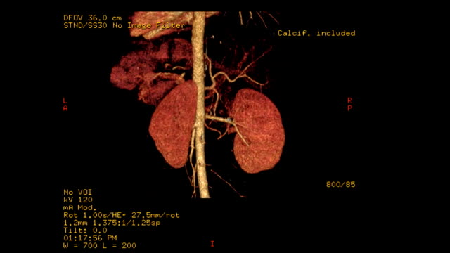 CT-angiography-of-the-celiac-trunk-with-kidney-3D-rendering-image-