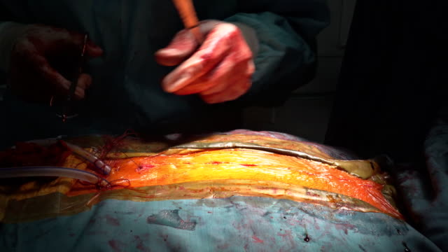 Doctor-sews-up-the-patient-after-surgery-for-a-heart-surgeon-open-operating