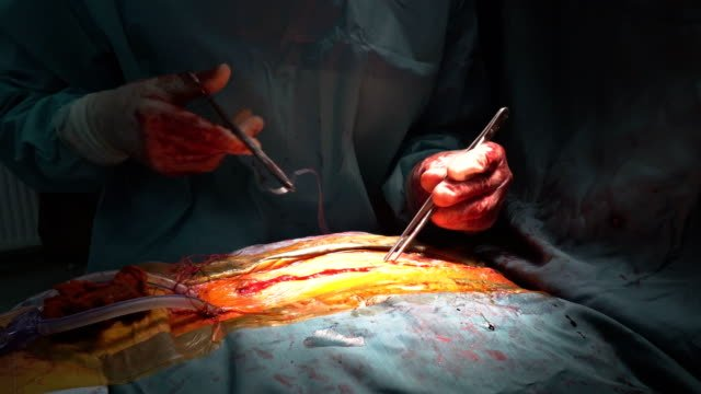 Close-up-after-the-cardiac-surgery-wire-seams-with-many-surgical-clamps