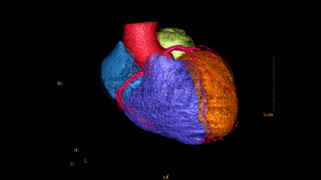 CTA-Coronary-artery-colorful-3D-rendering-image-CT-angiographphy-for-heart-disease-