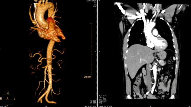 computed-tomographic-angiography-(-CTA-)-of-Thoracic-Aorta-3D-rendering-image-VS-CORONAL-PLANE-