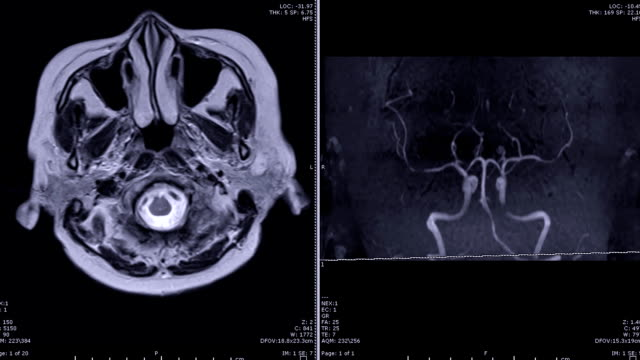 Magnetic-resonance-Angiography-(MRA)-of-the-brain