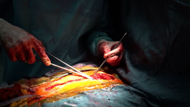 Closing-chest-after-heart-surgery-the-operation