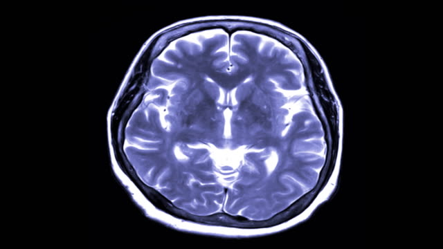 MRI-brain-scan-axial-view-on-black-background-magnetic-resonance-imaging-