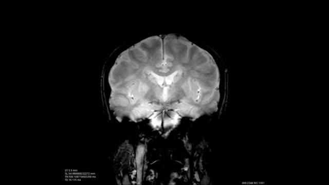 Brain-scan-image