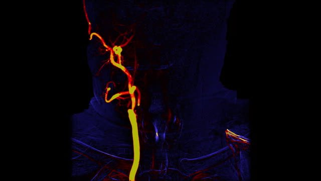 Colored-Brain-vessels-angiography-|-Cerebral-angiogram-