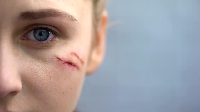 Indefensa-mujer-con-cicatrices-en-el-rostro-mirando-a-cámara-violencia-doméstica