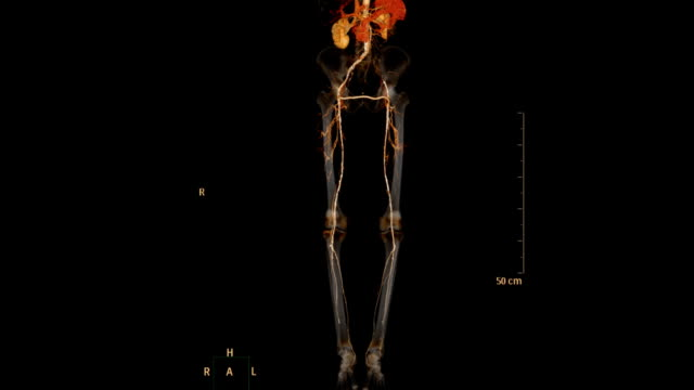 CT-SCAN-of-lower-extremity-