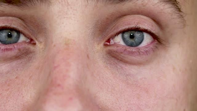 Cerca-de-dos-ojos-rojos-molesto-de-la-sangre-del-hombre-afectado-por-conjuntivitis-o-después-de-la-gripe-frío-alergia-Copiar-el-espacio-para-el-anuncio-Ojos-cansados-después-de-trabajar-en-la-computadora-Macro-y-Close-up-videos