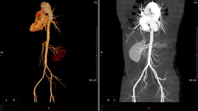 CTA-abdominal-aorta-