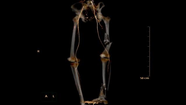 CTA-femoral-artery-run-off-