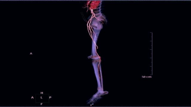 CTA-femoral-artery-run-off-3D-rendering-image-