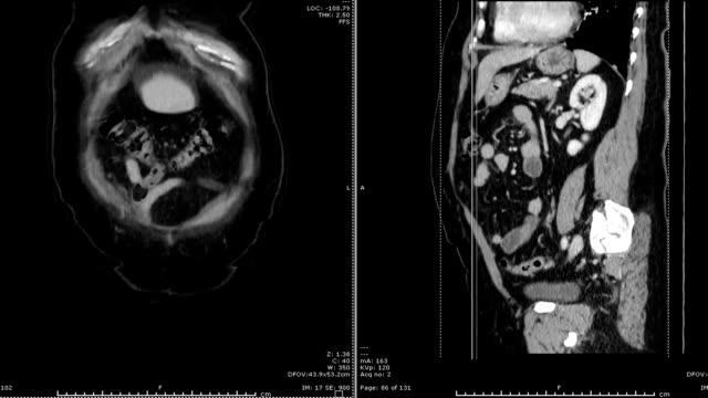 CT-scan-/-CTA-abdominal-aorta-medical-technology-concept-
