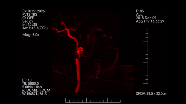 Red-colored-Medical-monitoring-of-brain-blood-vessels-Cerebral-angiography-