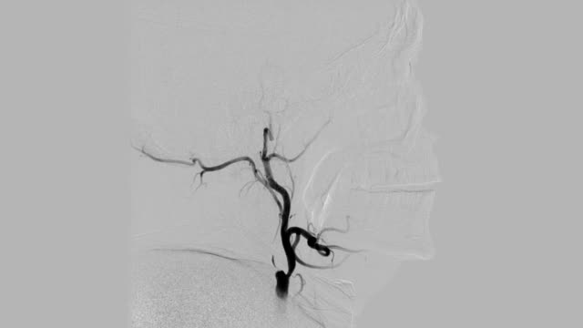 Grey-colored-Cerebral-angiogram-Brain-vessels-angiography-