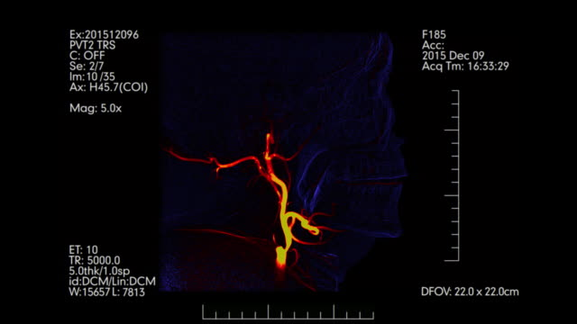 Blue-and-orange-Medical-monitor-Side-view-of-cerebral-angiogram