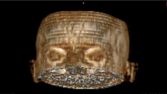 Exploración-por-TAC-con-imagen-en-3D-del-cráneo-humano-normal-para-examen