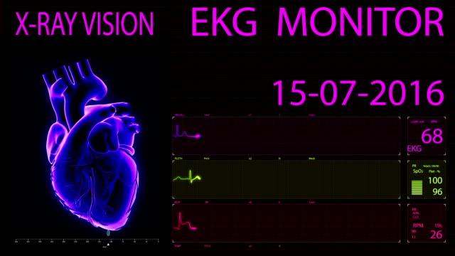 EKG-Monitor-Animated-Heart