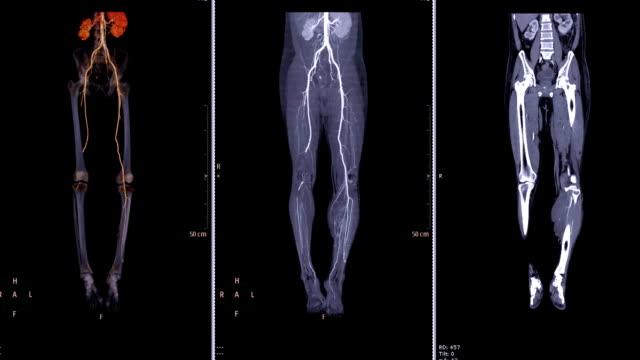 La-arteria-femoral-CTA-escurr-procesamiento-de-imagen-3D