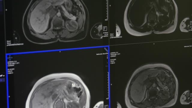 Brain-tomography-on-MRI-scan-Professional-Medical-Equipment-