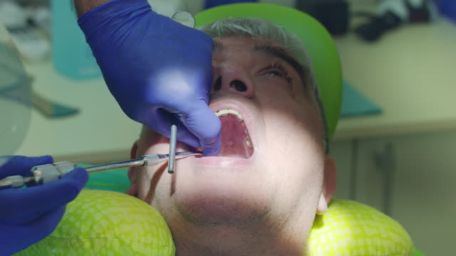 Decay-tooth-removal-process-Close-up-dentist-hands-removing-sick-tooth