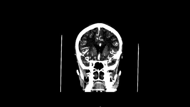 CT-SCAN-angiography-of-the-brain-