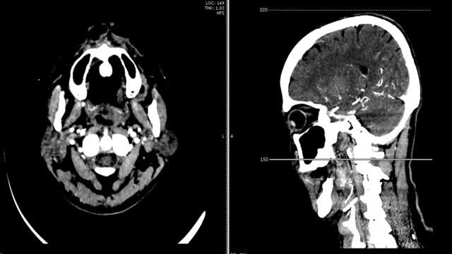 Angiografía-de-la-tomografía-computarizada-de-cerebro-con-medio-de-contraste-Axial-y-sagital-visión-renderizado-3D-