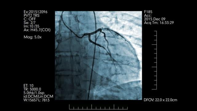 Monitoreo-digital-de-los-vasos-del-corazón-|-Angiografía-cardiovascular