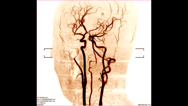 blood-vessels-scan-image