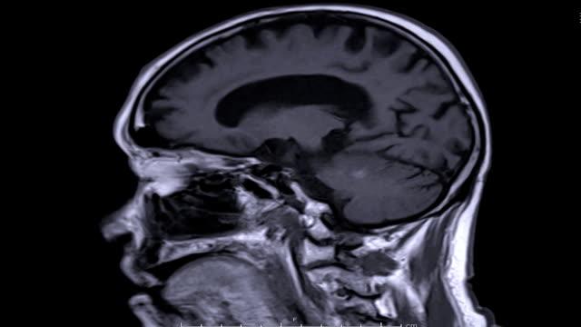 Magnetic-resonance-imaging-(MRI)-of-the-brain-in-sagittal-plane-