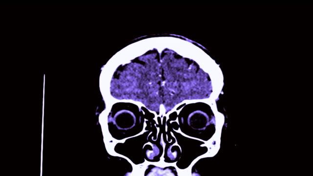 CTA-of-the-brain-3D-Rendering-image-in-coronal-plane-