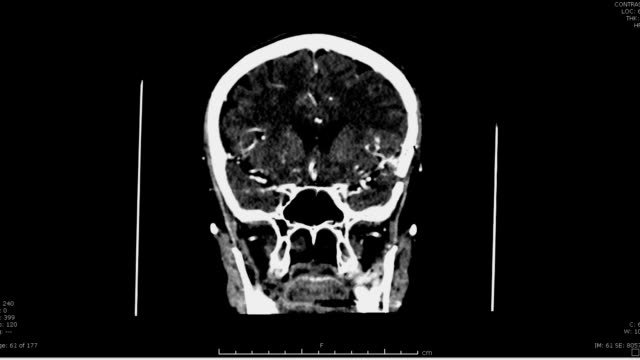 Ct-scan-of-the-brain-with-contrast-media-