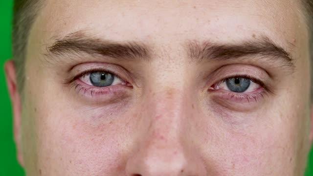 Nahaufnahme-von-zwei-verärgert-rotes-Blut-Augen-der-männliche-betroffene-Konjunktivitis-oder-nach-Grippe-kalt-Allergie-Platz-für-Werbung-zu-kopieren-Müde-Augen-nach-der-Arbeit-am-Computer-Close-up-Videos-und-Makro