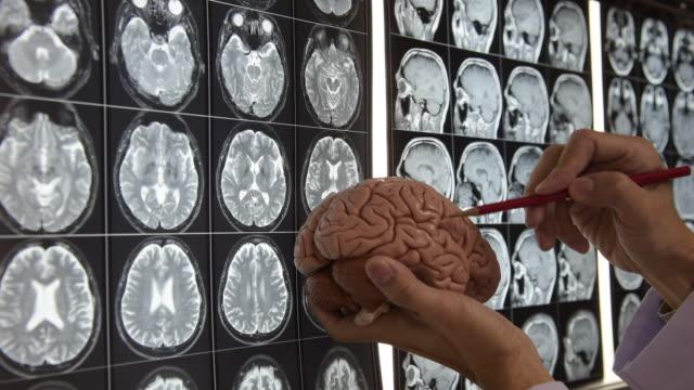 Doctor-demonstrating-brain-anatomy