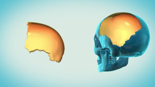Parietal-Bone-with-a-heavenly-background