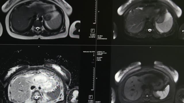 Brain-tomography-on-MRI-scan-